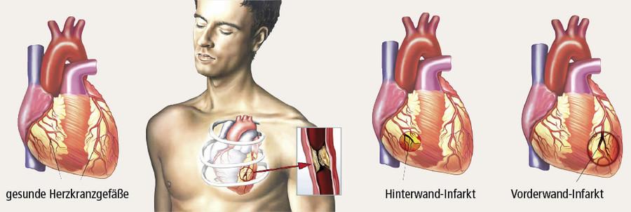 Herzinfarkt: Symptome und Risiko bei Diabetes   Focus Arztsuche