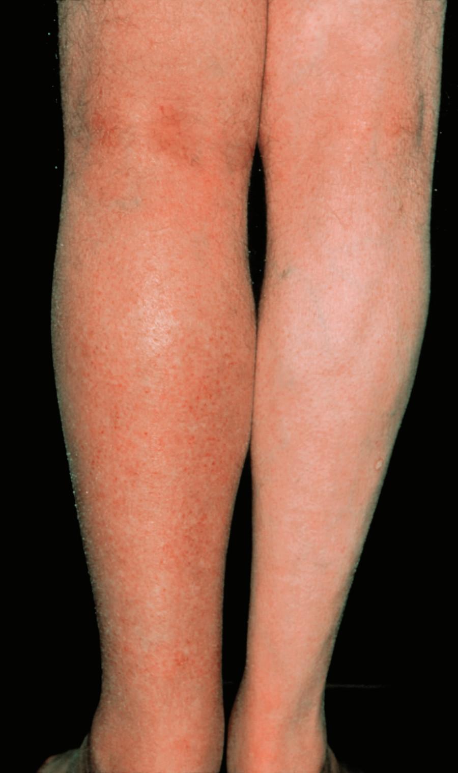 Ob man die Beine von gribka während der Schwangerschaft behandeln kann